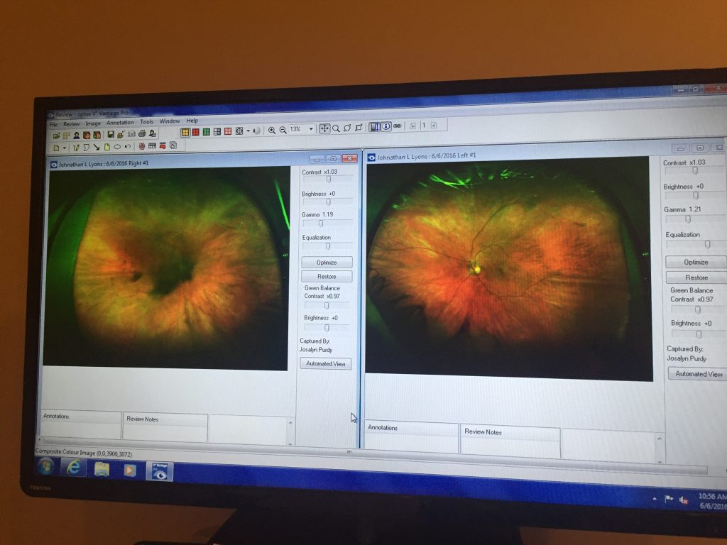 Scan of my eye